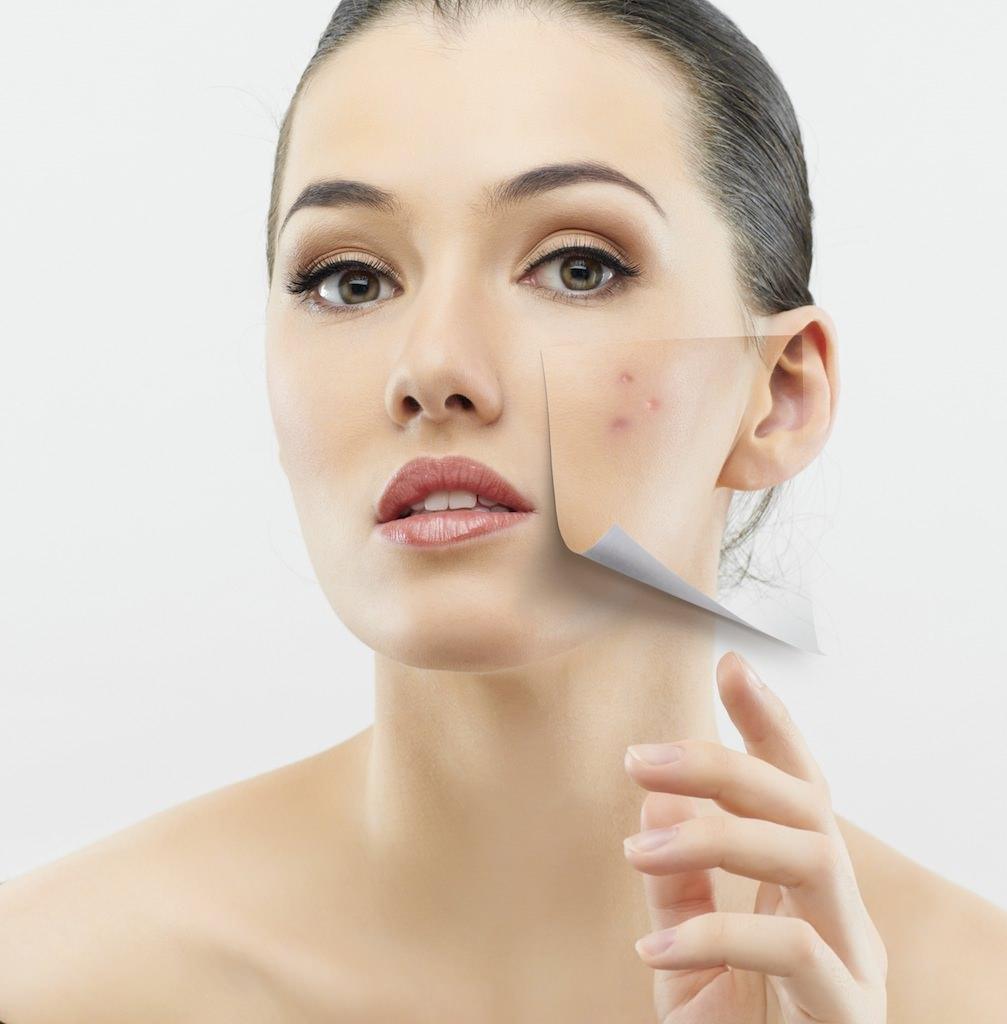 Как убрать дряблость кожи на лице в домашних условиях